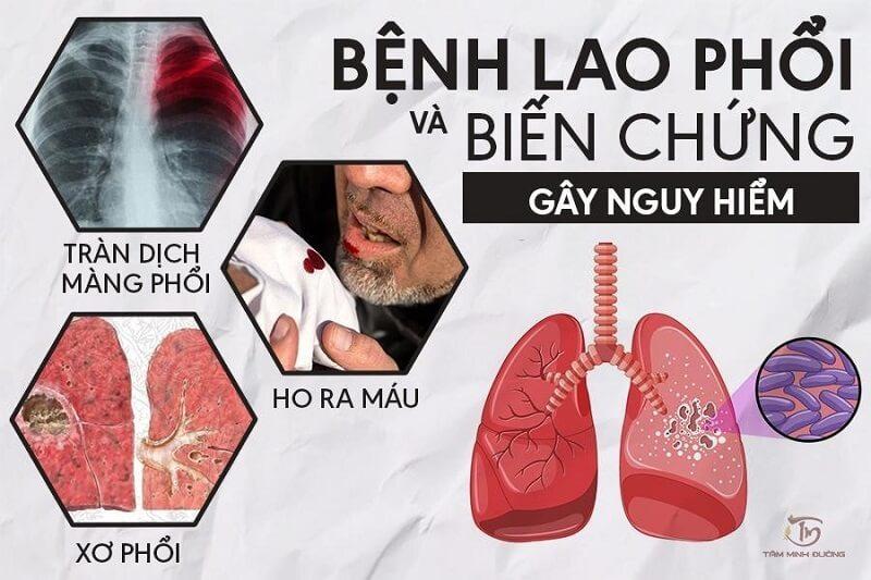 Bệnh lao phổi và biến chứng