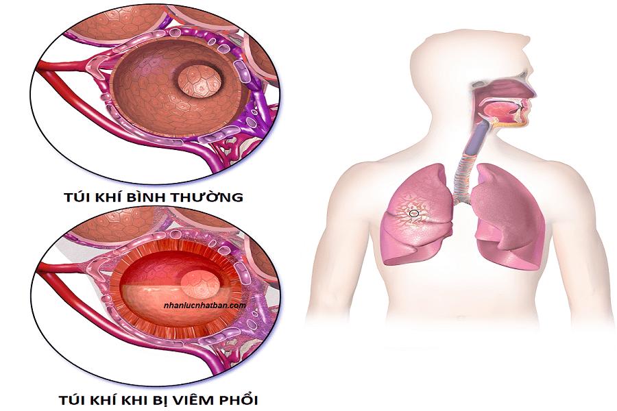 Triệu chứng bệnh viêm phổi