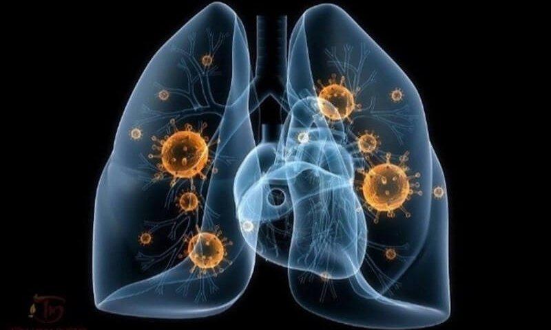 Bị lao phổi có đi Nhật Bản làm việc được không